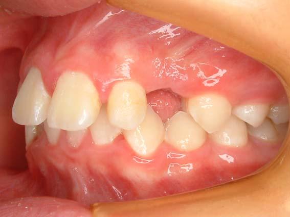 永久歯 生え て こない